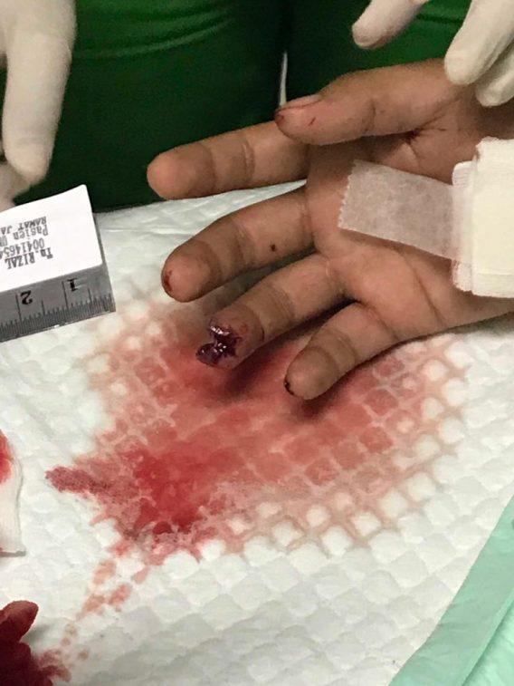 Oknum Brimob Tembak Pemuda di Batam